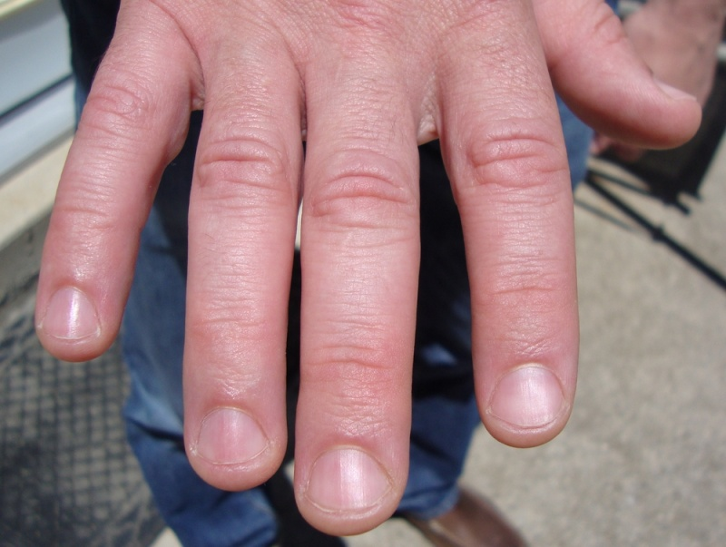 Kidney disease and fingernails - Awesome Nail