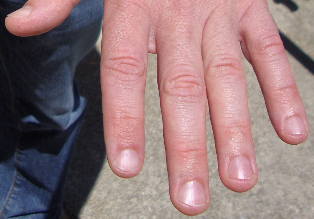 Meaning Vertical Nail Ridges#%